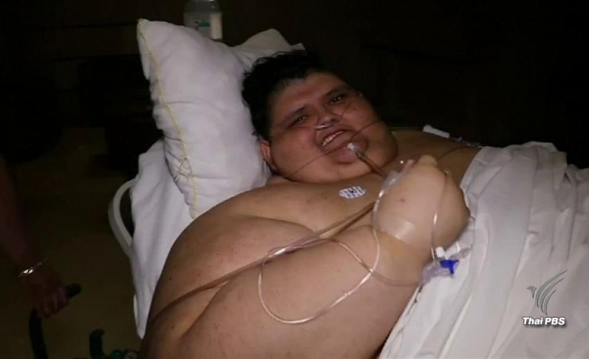"""ผ่าตัด """"ชายอ้วน"""" มากที่สุดในโลกในเม็กซิโก"""