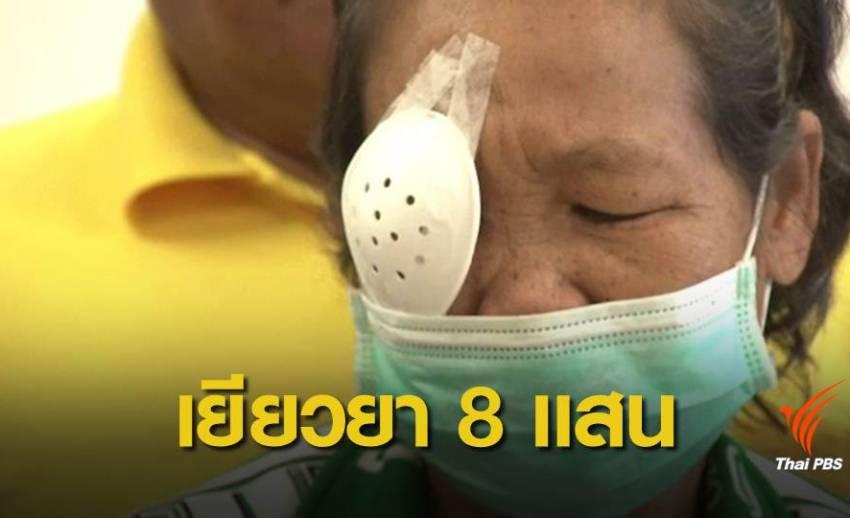 เยียวยา 8 แสนบาท ผู้เสียหายใช้น้ำสมุนไพรหยอดตาบอด