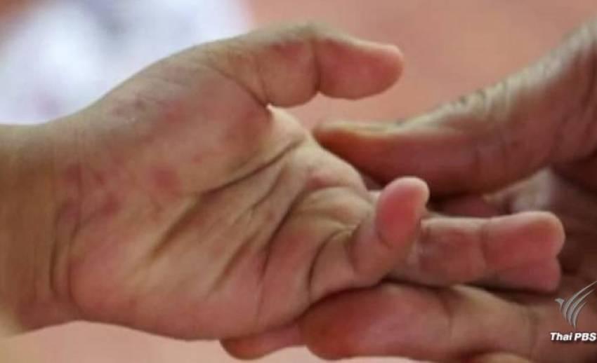 """เตือน """"มือ เท้า ปาก"""" ระบาดช่วงเปิดเทอม 4 เดือนป่วย 11,326 คน"""