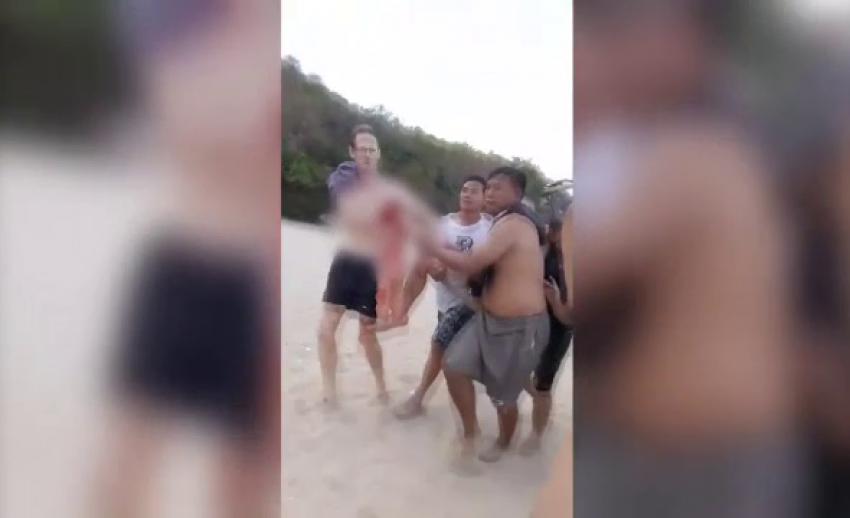 """ยังไม่ชัดเจน นักท่องเที่ยวต่างชาติ ถูก """"ฉลาม"""" กัดหรือไม่"""