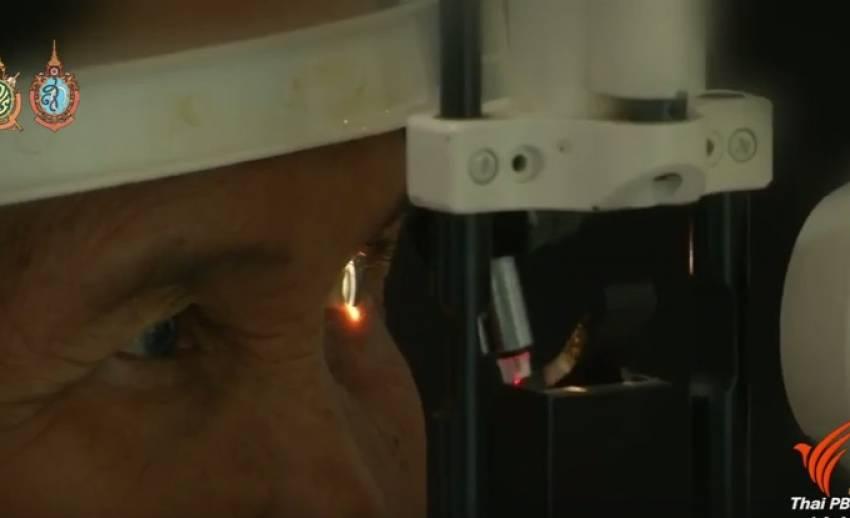 """ผู้สูงอายุชายแดนใต้ """"ปลื้ม""""สถาบันพระปกเกล้าผ่าตัดแก้ต้อกระจกฟรี"""