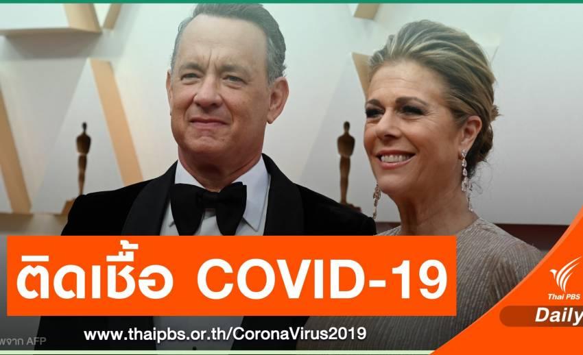 ทอม แฮงก์ส - ภรรยา ติดเชื้อไวรัส COVID-19