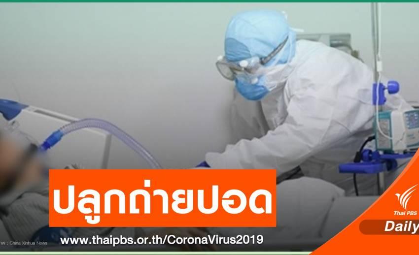 ทีมแพทย์จีนปลูกถ่ายปอด 2 ข้างให้ผู้ติดเชื้อ COVID-19 สำเร็จ