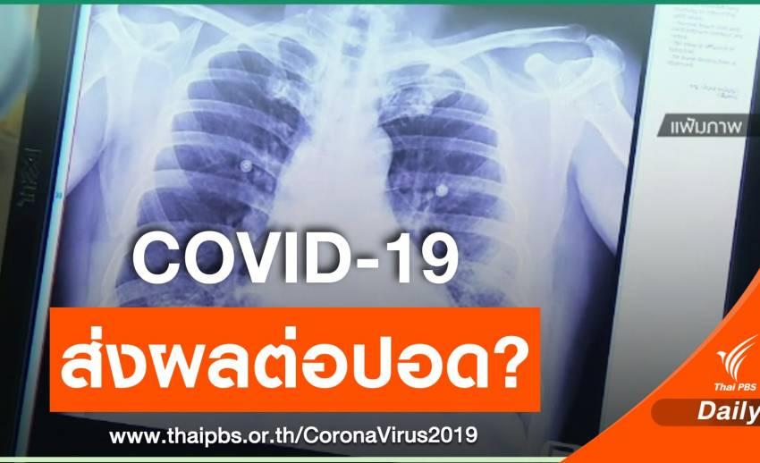 หมอแจงผู้ป่วย COVID-19 หายแล้ว ส่วนใหญ่ปอดยังทำงานได้ปกติ