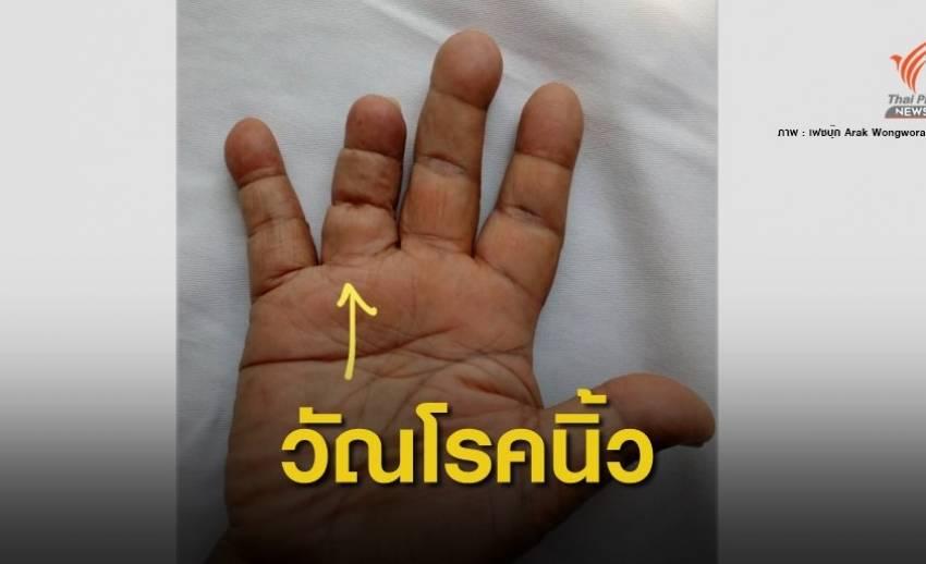 """หมอเตือน """"วัณโรคกระดูกลงนิ้วมือ"""" เจอเคสแรกในรอบ 15 ปี"""