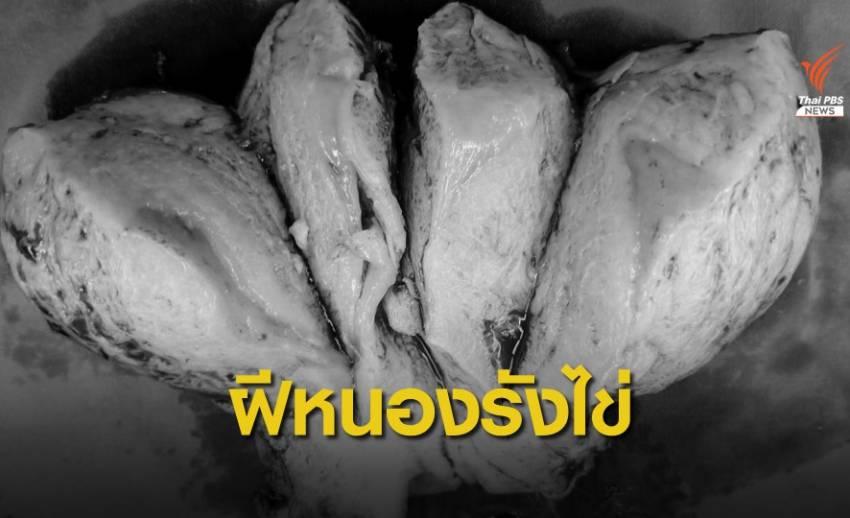 สัญญาณเตือน ปวดท้องน้อยบ่อย-มีไข้ เสี่ยงเป็นฝีหนองในรังไข่