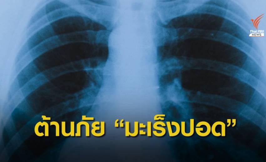 คนไทยป่วยมะเร็งปอดเพิ่มวันละ 42 คน แนะตรวจเร็วลดเสี่ยงเสียชีวิต