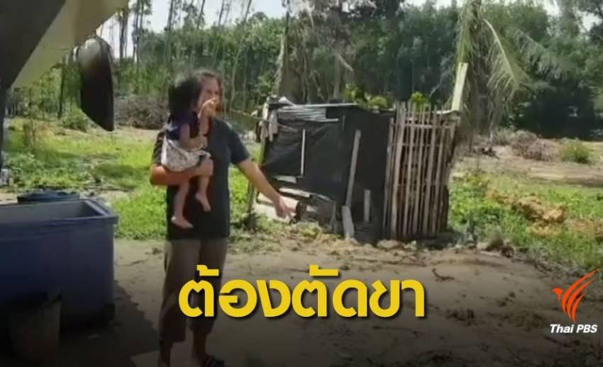 หญิงอายุ 24 ปี ถูกสุนัขกัดต้องตัดขา
