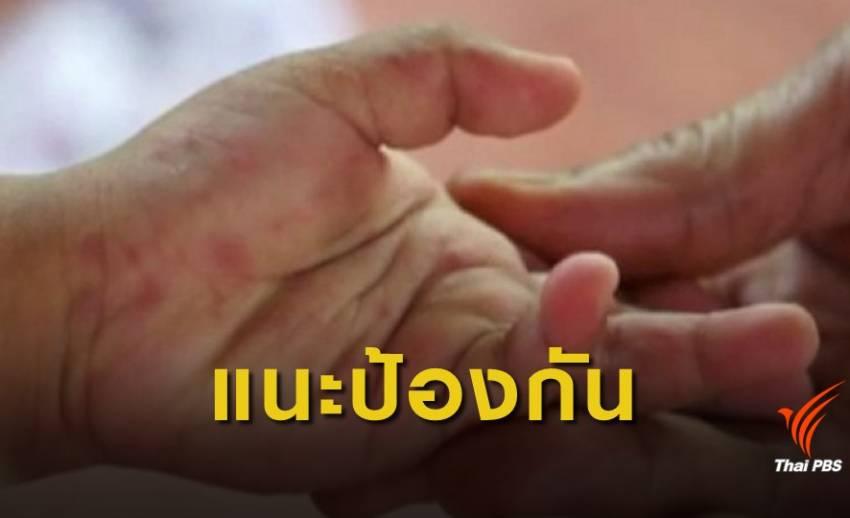 """เตือนระวังโรค """"มือ เท้า ปาก"""" ปีนี้พบป่วยแล้ว 10,775 คน"""