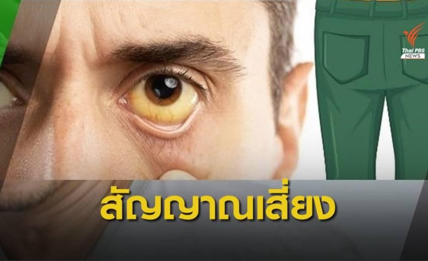 """หมอเตือน """"ตาเหลือง-ตัวเหลือง"""" สัญญาณเสี่ยงมะเร็งตับ"""