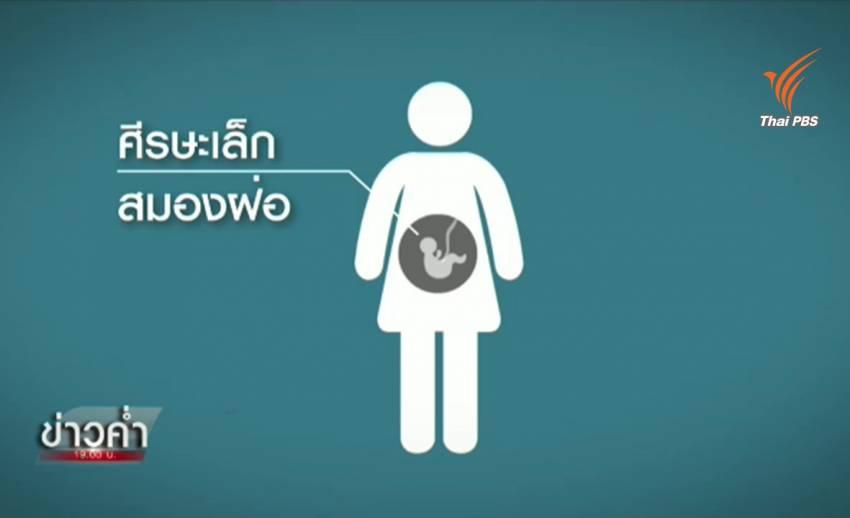 ทารกในครรภ์เสี่ยงพิการหากติดเชื้อไวรัสซิกา