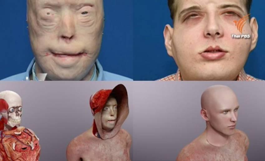 แพทย์สหรัฐฯ ผ่าตัด 26 ชม. สวมใบหน้าผู้บริจาคให้อาสาสมัครดับเพลิงถูกไฟคลอกสำเร็จ